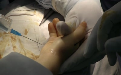 Surgery video Tags: Contracture was used 1 times.