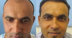 Hair transplant results with Advanced FUE method - Surgery Photos - Surgical Images