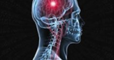 January 2009: Spinal Vascular Malformations - Surgery Podcast