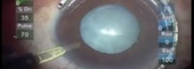 Traumatic Cataract: Capsule Tension Ring and Vitrectomy