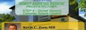 Robotic Radical Prostatectomy - STEP 4- Dorsal Venous Complex (DVC) Suture Control