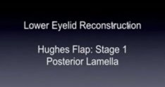 Hughes Flap Lower Eyelid Reconstruction