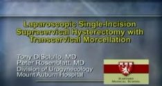 Laparoscopic Single-Incision Supracervical Hysterectomy with Transcervical Morcellation