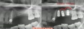 Sinus Lift & H1 Drill of IBS implant system 3.26