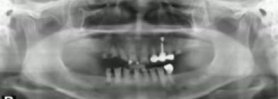 Immediate Fixture Implantation after extracting teeth of IBS implant system