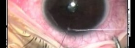 Modified corneal traction suture in glaucoma surgery