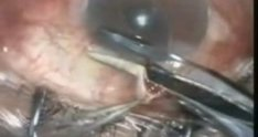 Trabeculectomy, complication with vitreous prolapse - Dr. Mauricio Turati Acosta