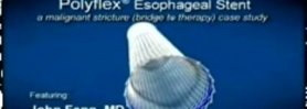 Polyflex® Esophageal Stent case studies and procedural footage - Dr. Fang