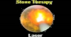 Intraductal footage using Holmium Laser with SpyGlass® System for large stones in the CBD