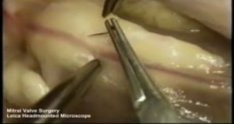 Leica HM500 User Video Surgery - Mitral Valve Surgery