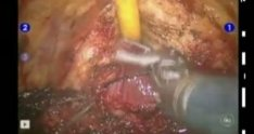 Robot Assisted Simple Prostatectomy [short] performed by Dr DV Matei in Milan