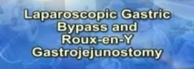 Laparoscopic Gastric bypass and Roux-en-Y Gastrojejunostomy