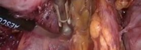 LAPAROSCOPIC RESECTION OF PARAMETRIAL ENDOMETRIOSIC NODE