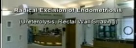 Endo Treatment - Radical Excision of Endometriosis