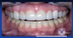 Tulsa Institute and Dr. David Wong: Root Coverage Alternative to Gum Grafting (Excerpt)