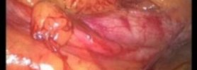 Transvaginally NOTES-assisted laparoscopic living donor nephrectomy