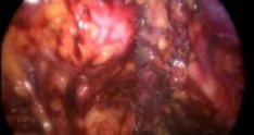 Complete Laparoscopic Resection Of Tension-Free Vaginal Tape
