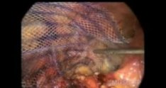 Laparoscopic repair of a hernia