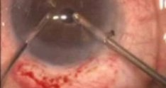 Basics of an anterior vitrectomy (Eyepodvideo.org)