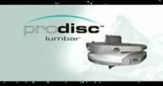 Synthes Spine ProDisc-L Lumbar Total Disc Replacement - Animation