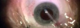 Cataract Surgery with Small Pupil and Floppy Iris but no Flomax History