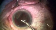Perfect Cataract Surgery