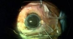 Traumatic Cataract with Zonular Weakness Repaired With Endocapsular Tension Ring