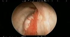 Colloid Cyst