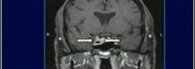 Exploration of Cavernous Sinus By an Endoscopic Approach