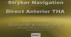 Direct Anterior THA approval2