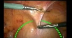 Laparoscopic paravaginal repair
