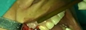 periodontal surgery video preview 01