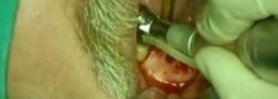 periodontal surgery video preview 02