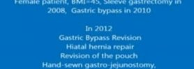 Gastric Bypass Revision: hiatal hernia repair, hand-sewn gastrojejunostomy (Dr Nagi Safa)