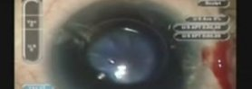 The use of Trypan Blue and Reverse Tear Capsulorhexis in a mature white cataract