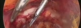 Laparoscopic Direct Inguinal Hernia Repair