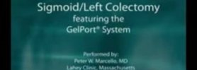 Sigmoid Colectomy featuring the GelPort Laparoscopic System