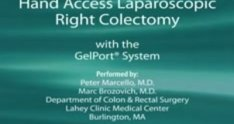 Hand Access Laparoscopic Right Colectomy