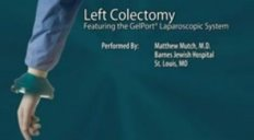 Hand Access Laparoscopic Left Colectomy