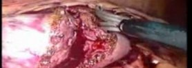 Laparoscopic Partial Nephrectomy