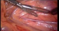 Laparoscopic pyeloplasty