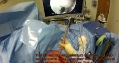 Arthroscopic removal of Shoulder Loose Body with Synovectomy and Chondroplasty