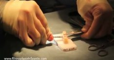 How to fix an short, up-turned nose with rib cartilage | Seattle Revision Rhinoplasty Surgeon