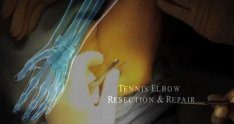 Tennis Elbow Resection and Repair