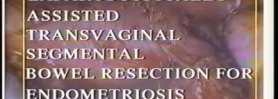 Transvaginal segmental bowel resection