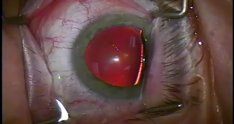 628428 cataract surgery