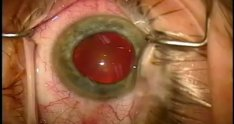 441922 cataract surgery