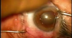 466095 cataract surgery