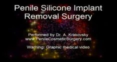 Penile Silicone Implant Removal Surgery