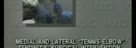Lateral Tennis Elbow / Medial Tennis Elbow Surgical Video - The Nirschl Procedure 1988